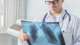Malaria and Tuberculosis: Global Killers