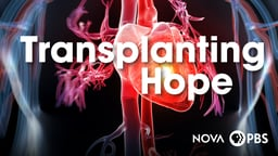 Transplanting Hope