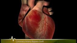 A Patient's Guide To Cardiac Surgery (Coronary Artery Bypass Surgery)