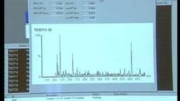 Clinical Biochemestry: Phenylketonuria