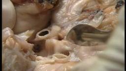 The Human Brain: Pathology