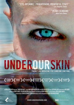 Under Our Skin - The Untold Story of Lyme Disease