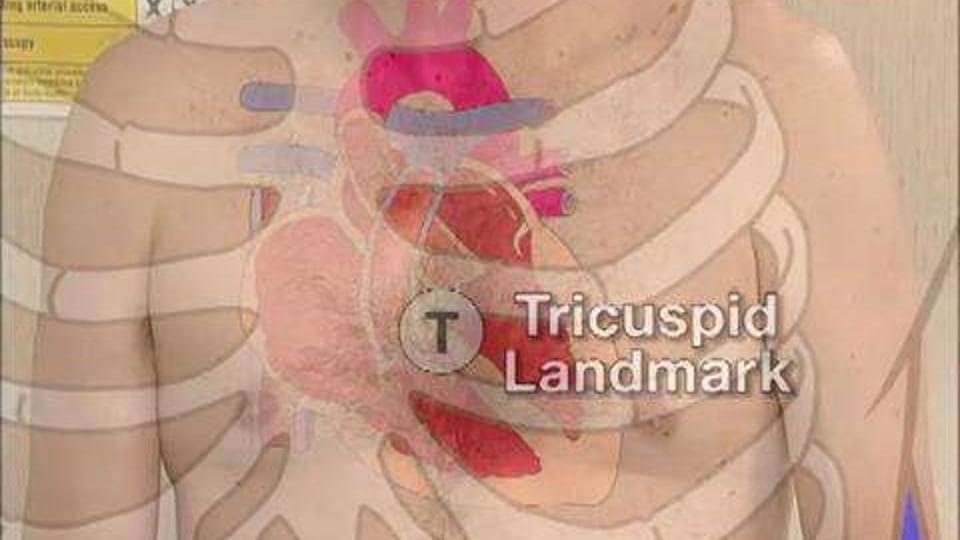Cardiac Auscultation: The Process of Basic Cardiac Auscultation