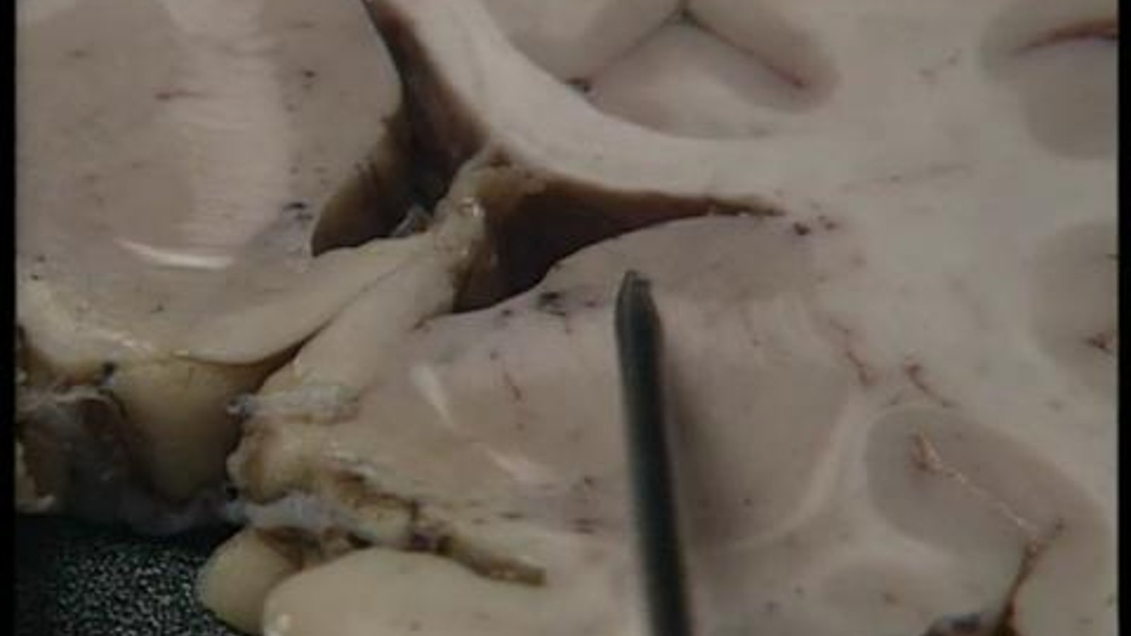 The Human Brain: Anatomy