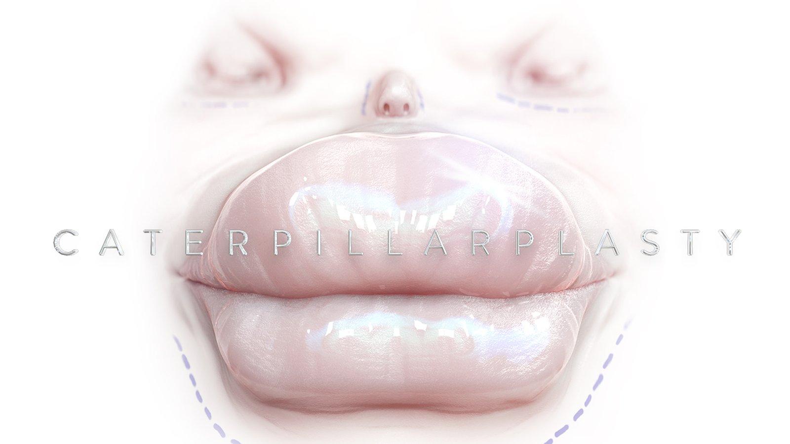 Caterpllarplasty